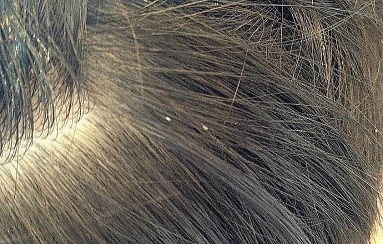 تغذیه شپش از موی انسان